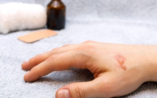 Home Remedies for Burns: Common Myths and How to Properly Treat Them