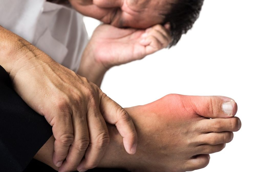 What are Some Home Remedies for Gout?