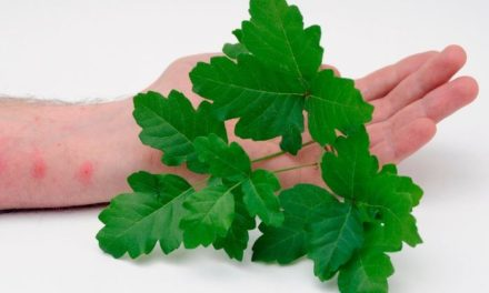 At-Home Remedies for Poison Ivy Relief