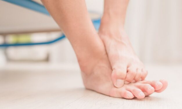 Effective At-Home Remedies to Help Treat Athlete's Foot