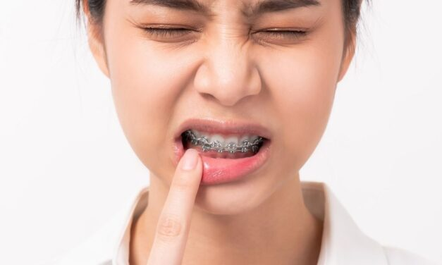 10 Best Home Remedies That Helps Ease Symptoms of Mouth Ulcers
