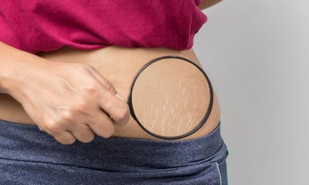 Easy Home Remedies To Help Get Rid of Stretch Marks
